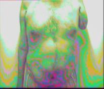 Amputierte Person mit PIP von vorne fotografiert